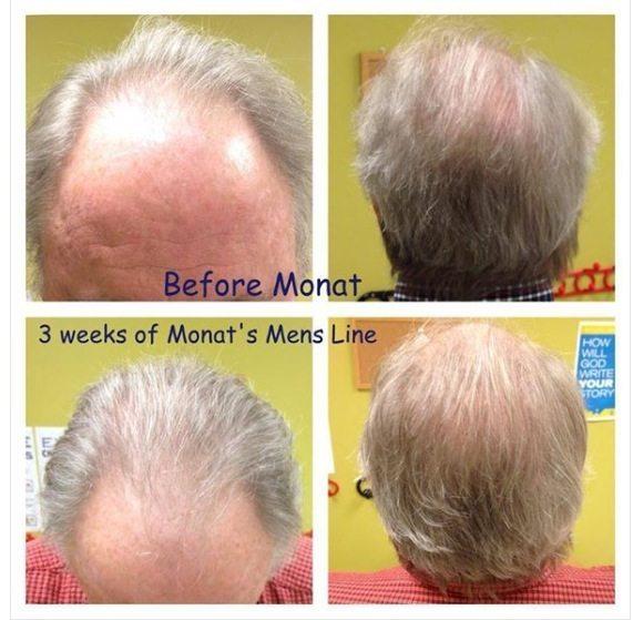 Monat Balding