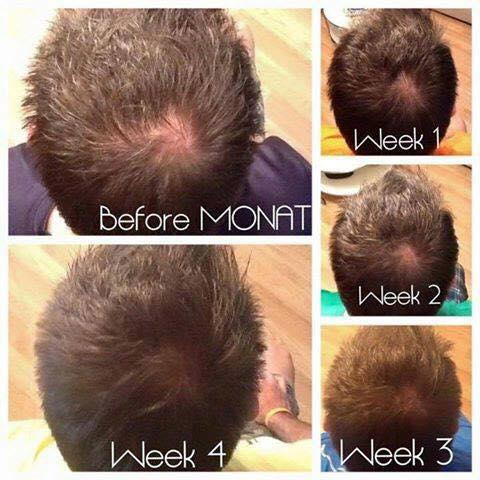Monat All Natural Hair Care Clinically Proven To Regrow Hair
